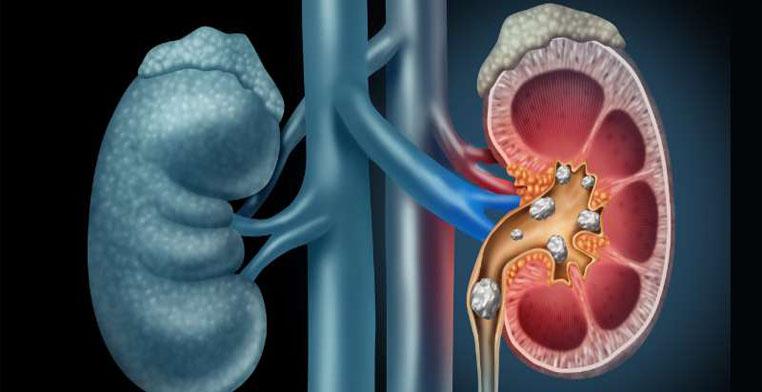 Kidney Renal Faliure