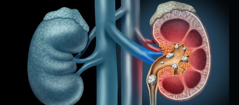 Renal  And Ureteric/Urinary Bladder Calculus